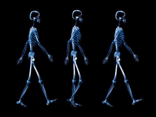 X-Ray xr22.jpg
